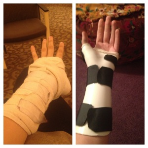 Cast on the left, splint on the right.